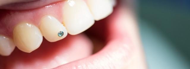 Nahaufnahme eines Mundes mit qualitativ hochwertigen und natürlich wirkenden Zahnersatz durch die Zahnarztpraxis Zahnärzte im Wengentor in Ulm