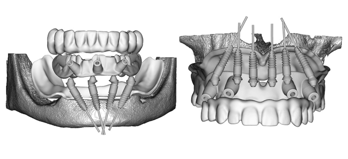 Schaubild einer Behandlung