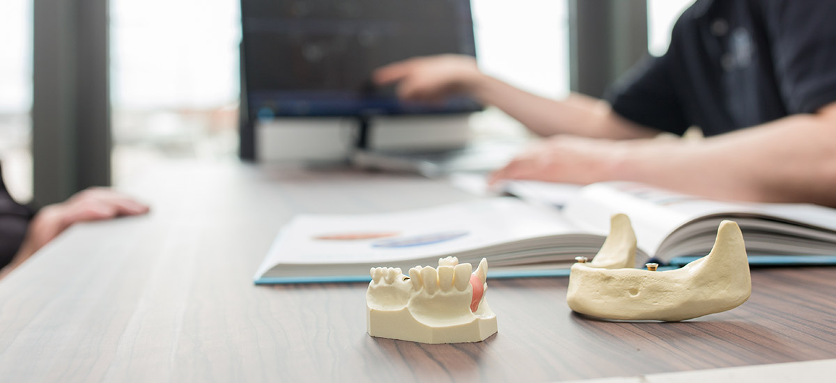 Modell für Zahnersatz auf Implantaten in Ulm.