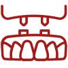 Zahnimplantate aus Ulm für optimalen Zahnersatz.