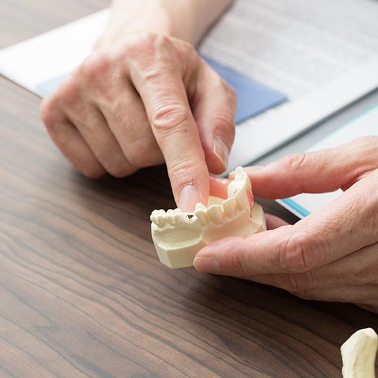 Zahnmodell zur Demonstration bei einem Beratungsgespräch zwischen Zahnarzt und Patienten in der Zahnarztpraxis Zahnärzte im Wengentor in Ulm